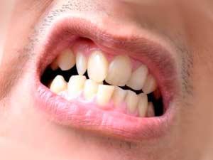 Дефекты зубного ряда