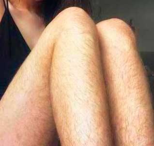 Волосы на ногах